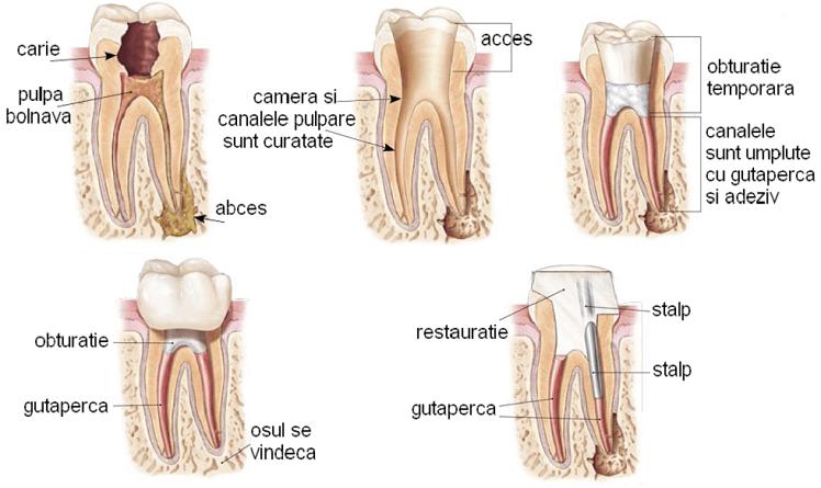 endodontie1-748x445